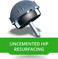 Uncemented Hip Resurfacing